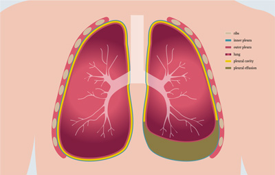Schematic illustration of pleural effusion